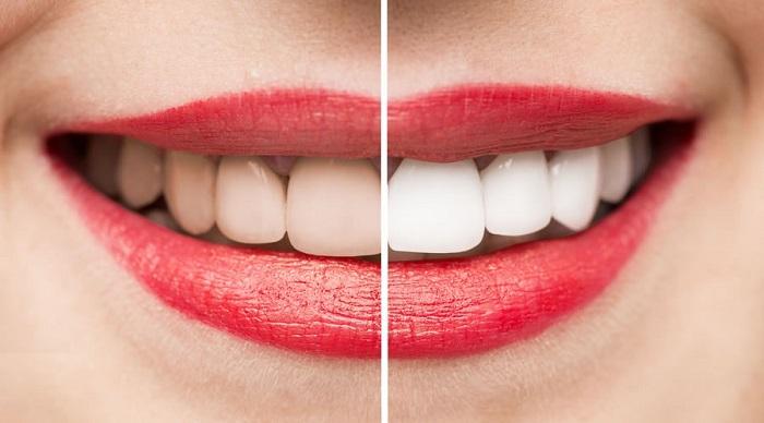 وش-های-مختلف-سفید-کردن-دندانر-