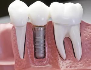 دندان از دست رفته خود را با ایمپلنت جایگزین کنید