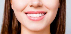 لبخند کامل چگونه ایجاد میشود
