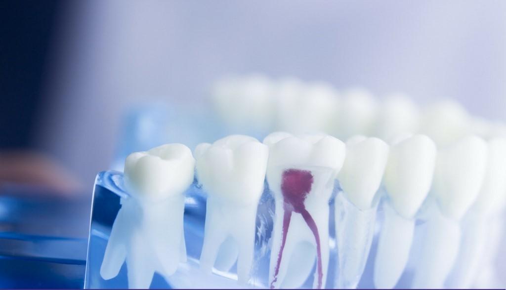 مراقبت های بین جلسات و پس از درمان ریشه دندان