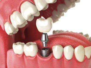 مزایای کاشت دندان های دیجیتال