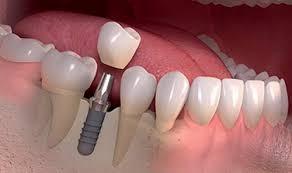 مزایای کاشت دندان 2