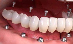 مزایای کاشت دندان