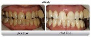مزایای کامپوزیت های باند شونده دندانپزشکی